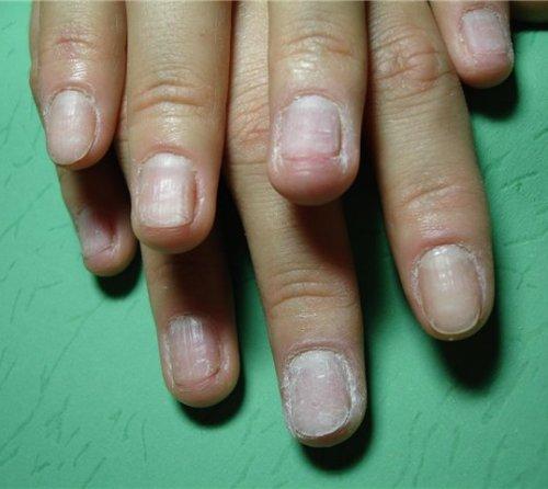 Жертва наращивания ногтей фото
