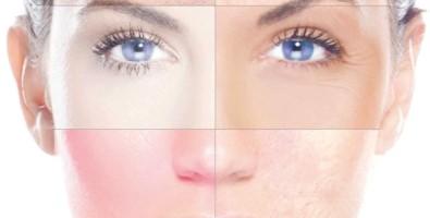 Как избавиться от покраснения, шелушения и зуда кожи лица