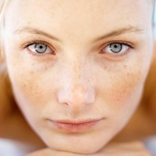 пигментация кожи, фото