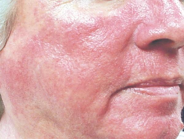 Обветренная кожа