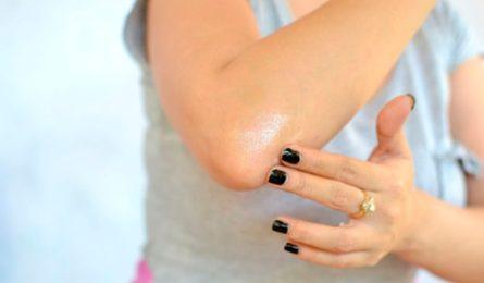 Причины возникновения шелушения кожи на локтях, этапы и формы лечения