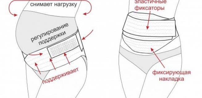 послеродовой бандаж как одевать фото